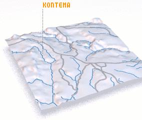3d view of Kontema